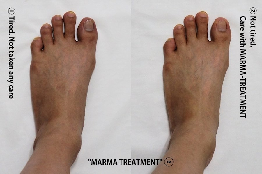foot care with marmatreatment